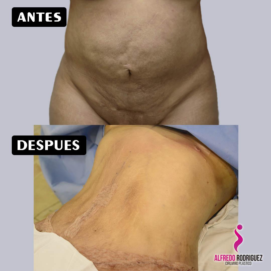 Abdominiplastia